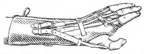 Ортопедические аппараты. Аппарат на верхнюю конечность с эластическими тягами.