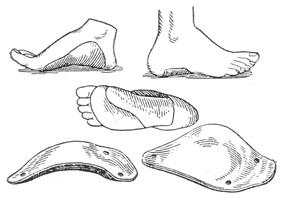 Ортопедическая обувь. Вкладная стелька-супинатор при  плоской стопе.