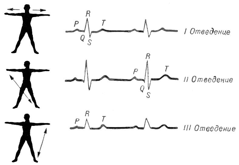 Стандартные отведения, применяемые для получения электрокардиограммы, и кривые