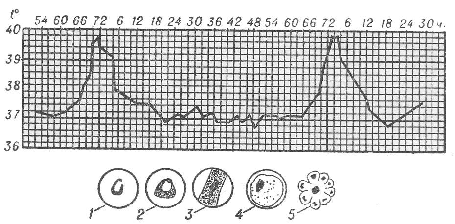 Четырехдневная малярия. Кривая температуры.
