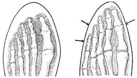 Нормальное положение и деформация пальцев стопы