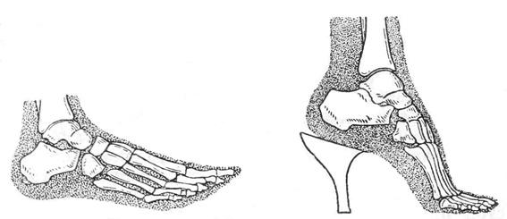 Рентгенограмма, показывающая нормальное (слева) положение стопы при стоянии и деформацию стопы (справа) в обуви на высоких каблуках.