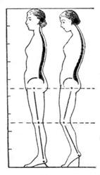 влияние обуви на высоком каблуке на осанку