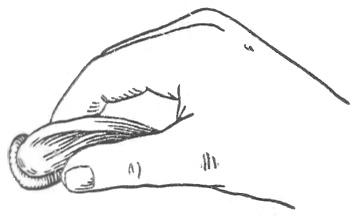 Рис. 4. Колпачок «КР» при введении во влагалище.