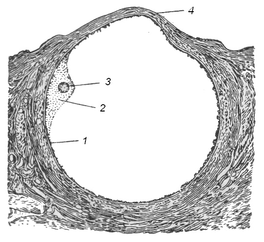 Рис. 2. Созревший граафов пузырек; 1 — клетки фолликулярного эпителия; 2 — яйценосный бугорок; 3 — яйцевая клетка; 4 —истонченный яичниковый эпителий — место будущего разрыва фолликула.